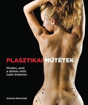 Antonia Mariconda - Plasztikai műtétek